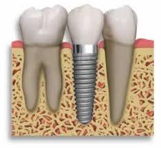 ایمپلنت دندان 4