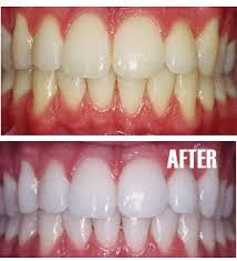 سفید کردن دندان 2