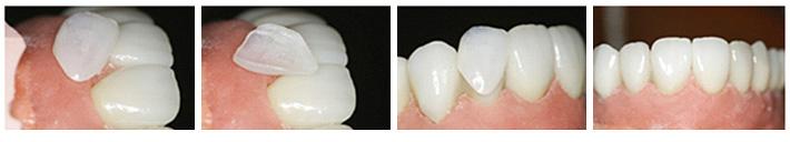 پروتزهای دندان 2