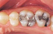 پرکردن دندان با مواد همرنگ 1