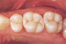 پرکردن دندان با مواد همرنگ 2