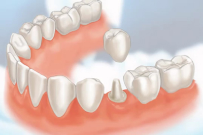 Dental-Crowns1