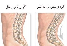 Lumbar-cause-and-corrective-action